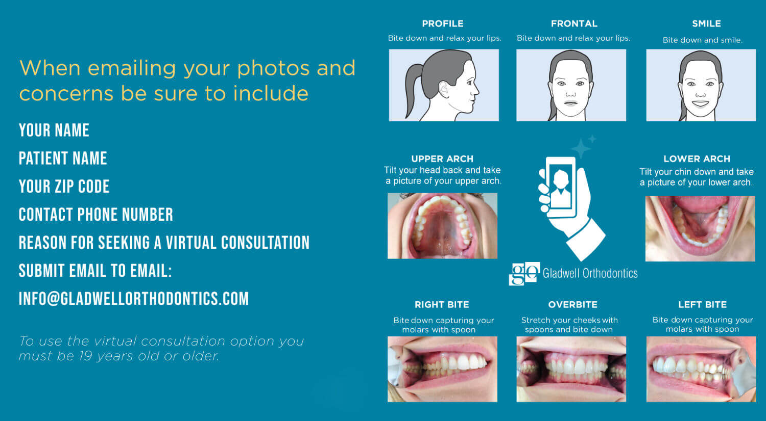 Gladwell Orthodontics - How to Guide for Invisalign Virtual Consultation
